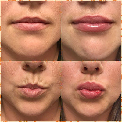Before-and-After-Lip-filler.jpg
