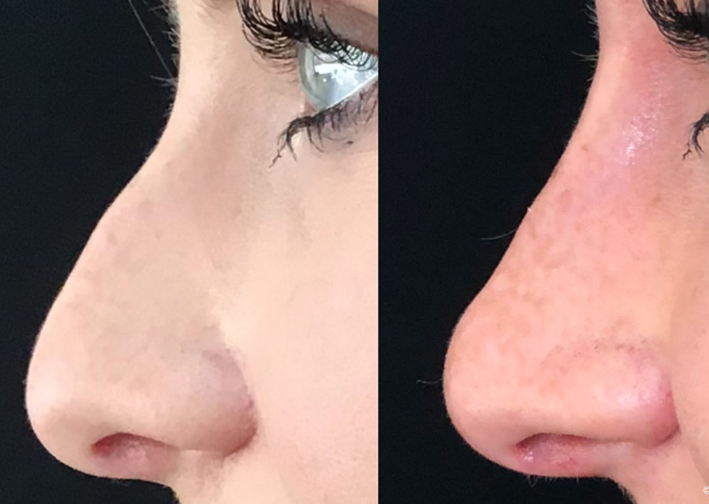non surgical nose