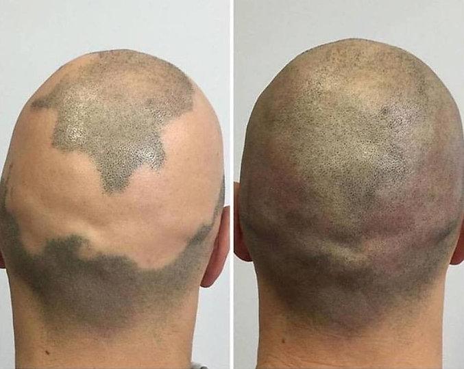 alopecia and SMP.jpg
