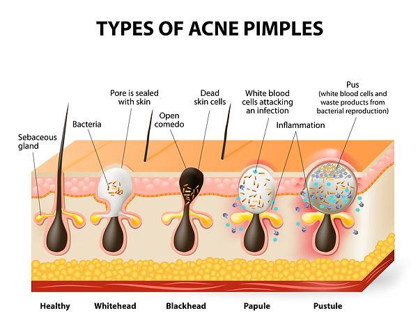 Type-of-acne-designua-.jpg