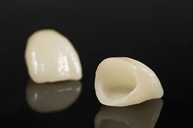 dental-crowns-min.jpg