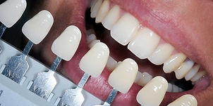 tooth-colored-fillings-photo-1200.jpg