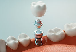 matney-implants.jpg