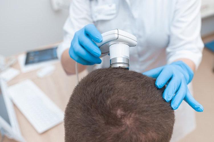 trichoscopy-man-s-head-beauty-parlor_978
