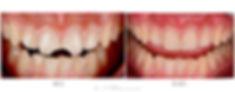 zaragoza-dentista-implantes-carillas-estetica-dental-andres-villanueva-iberdent-clinica-endodoncia-microscopica-aragon-implantes-dentales-implantologia-oral-blanqueamiento-corona-empaste-villanuevadental-odontologo