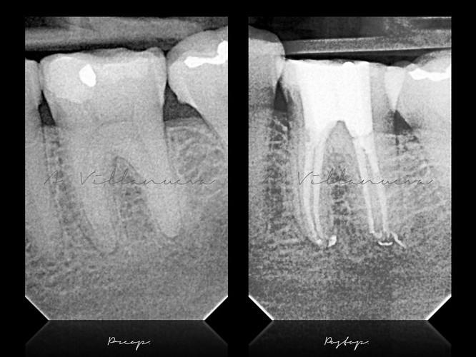 zaragoza-endodoncia-microscopica-dentista-nervio-especialista-aragon-microscopio-desvitalizar-andres-villanueva-villanuevadental-iberdent