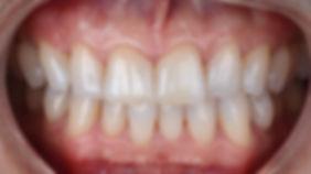 andres villanueva dental iberdent zarago