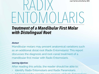 RADIX ENTOMOLARIS Treatment of a mandibular first molar with distolingual root