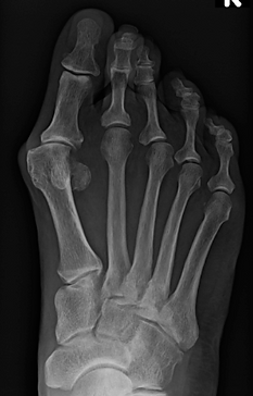Bunion2.png