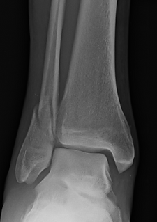 ankle fracture.PNG