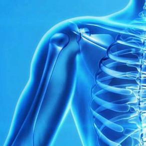 Schulterschmerzen – ist eine Operation nötig?
