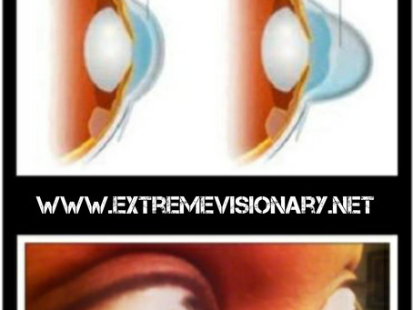 Advanced Keratoconus and Double Corneal Transplantation