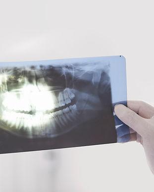 Oral-rehabilitation-in-cancun