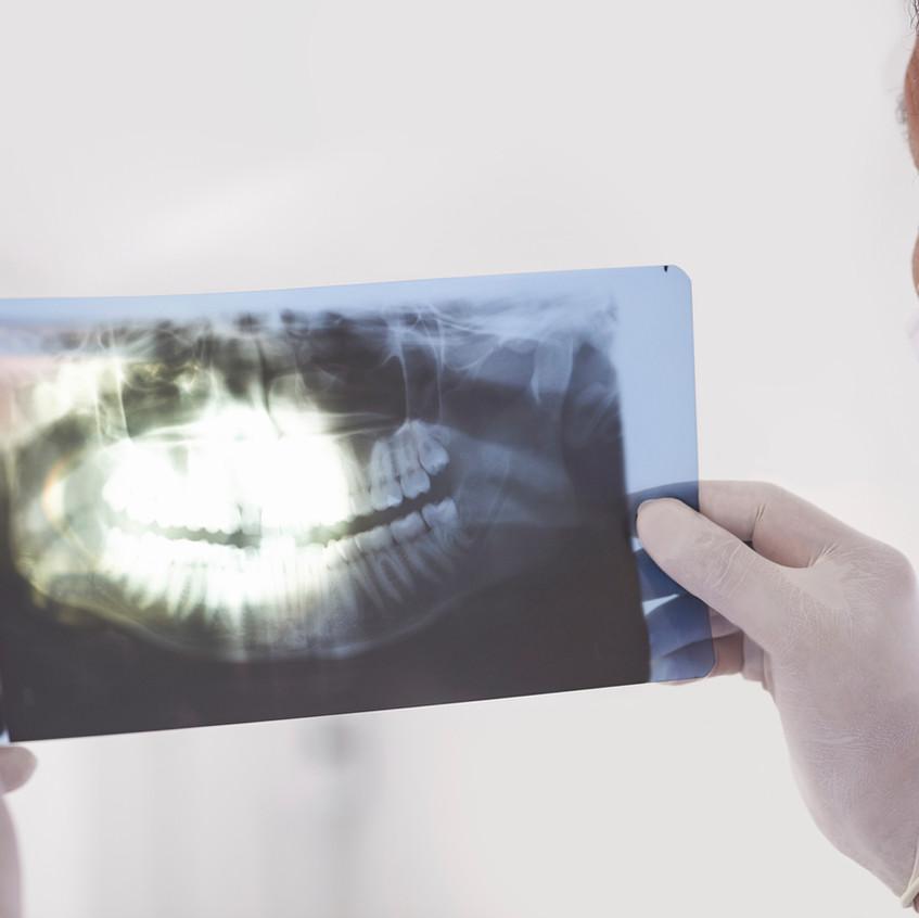 Examining an X-ray