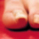 新百合ヶ丘,巻き爪,痛い,治す,病院,安い,BSスパンゲ,痛くない
