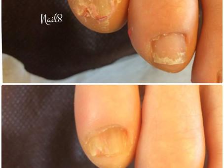 足の小指爪ケア