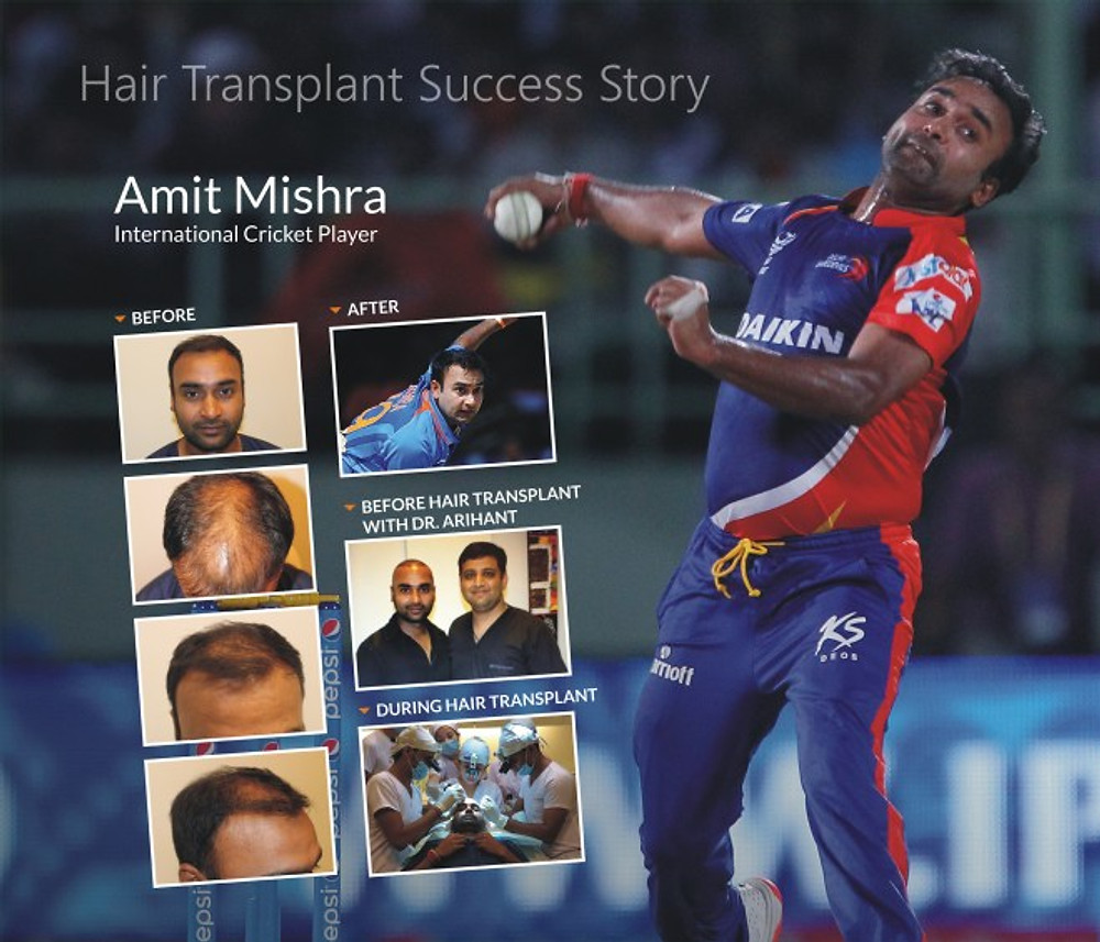 AMIT MISHRA HAIR TRANSPLANT