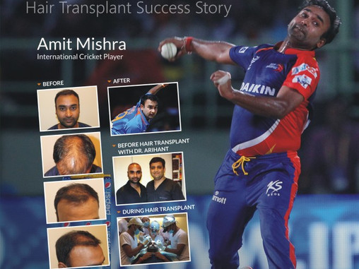 THANK YOU ALVI ARMANI FOR GIVING ME BACK MY HAIR AND MY CONFIDENCE-AMIT MISHRA (international cricke