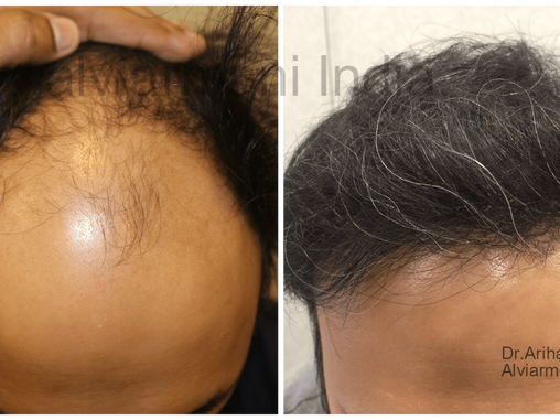 3634 Grafts Zone 1,2 and 3-AlviArmani FUE