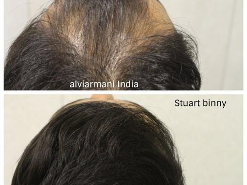Stuart Binny Hair Transplant-Latest Results