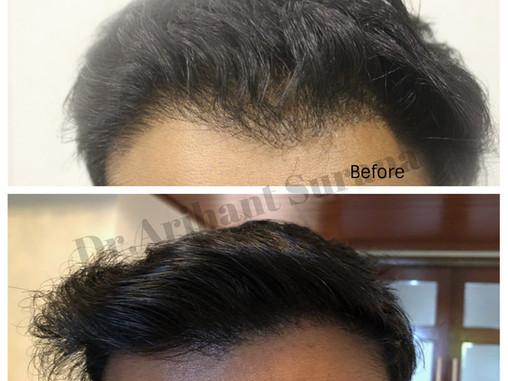 Hair Transplant Results – Dr.Arihant Surana