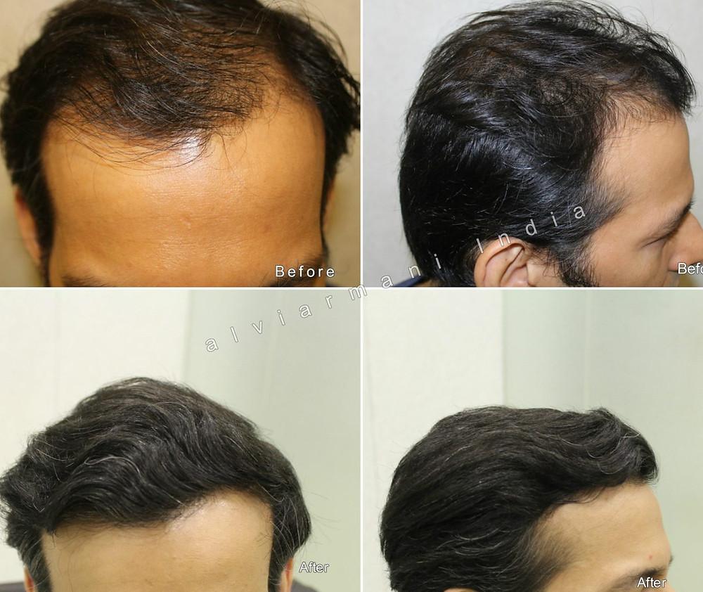 hairtransplantresults