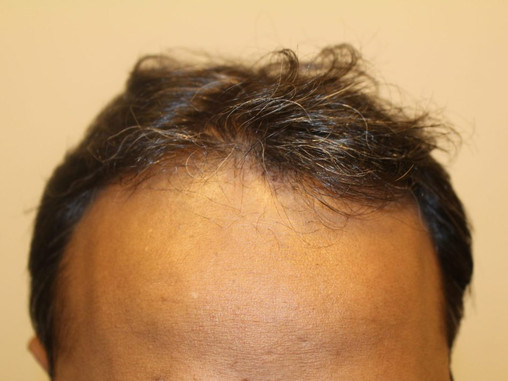 3504 grafts Maximus FUE ZONE 1 and 2-  23rd may.Surgeon-Dr.Arihant Surana