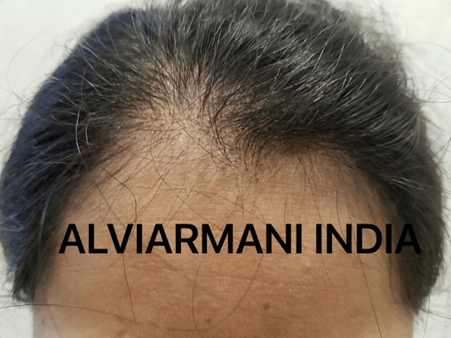 Hair Transplant for Women-A very successful approach
