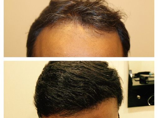 Hair transplant 3504 grafts 23 rd may 2014 result update