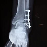 ankle-2253057_1920-1-1024x1024-nuhxra5fo