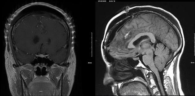 CK MRI 2.jpg