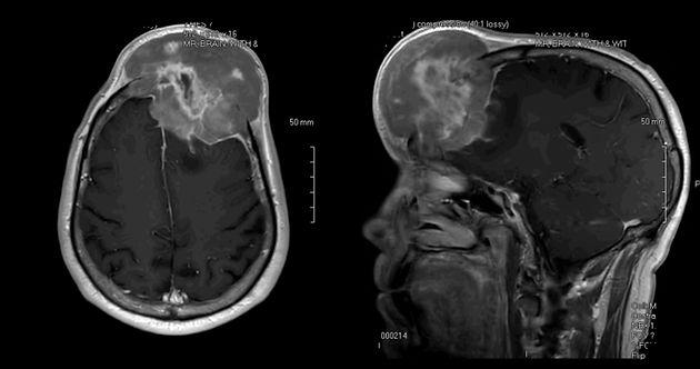 CH MRI 1.jpg