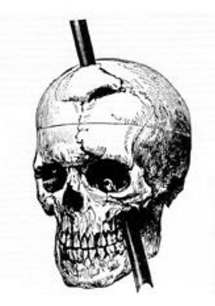 Phineas Gage skull railroad iron spike brain