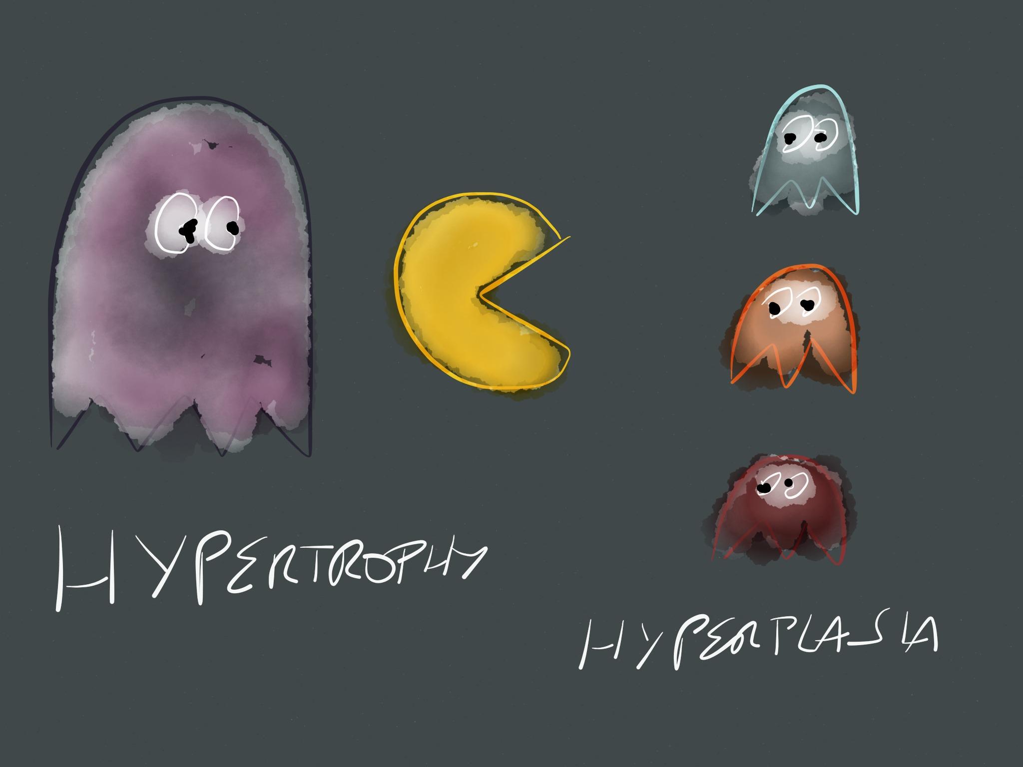 Hyperplasia v hypertrophy