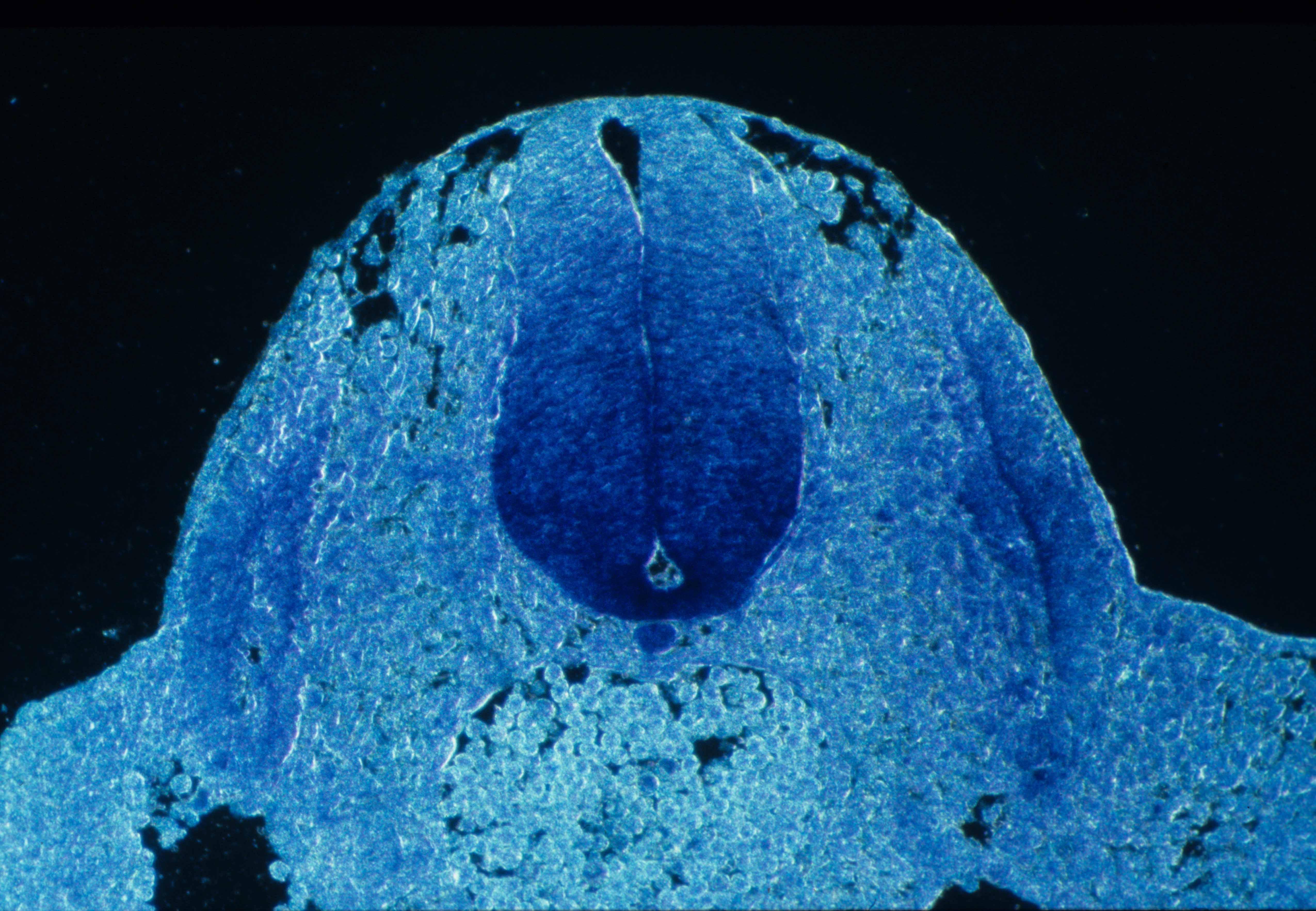 netrin-1 rat E11 spinal cord