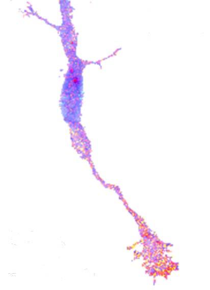 commissural neuron