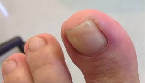 Ingrown Toenails and Toenail Fungus
