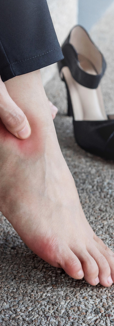 Women's Foot Pain
