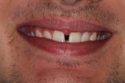 Diasthema (Gap)