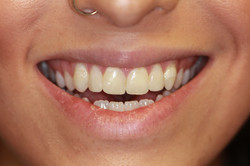 Two new veneers/reshaping centrals