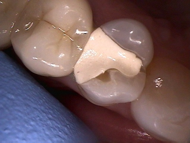 Failing filling with tooth fractures