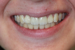Root Canals and Porcelain Crowns