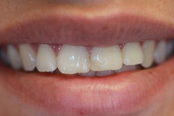 Fractured teeth and old restorations
