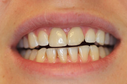 Fractured, discolored crowns