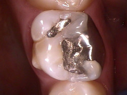 Old silver filling