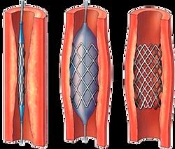 angioplastía EVP