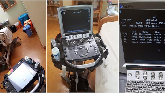 Prenatal Sonography in Northern Tanzania