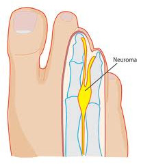 Foot Injury & Stretches