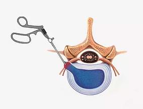 Cirurgia minimamente invasiva da coluna vertebral | CTC-MS