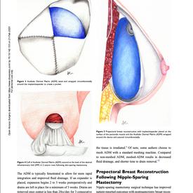 Open Access Surgery 2